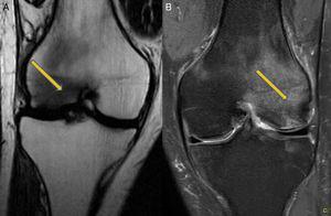 Resonancia magnética: A) Imagen al 2.° mes. Rodilla derecha. Afectación de cóndilo externo. B) Imagen al 6.° mes. Rodilla derecha. Afectación de cóndilo interno.