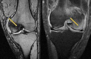 Imágenes de resonancia magnética: A) Situación al 10.° mes. Rodilla izquierda. Afectación de cóndilo interno. B) Situación al 12.° mes. Rodilla izquierda. Afectación de cóndilo externo.