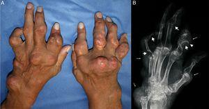 (A) Tophaceous gout with multiple tophi on both hands. (B) The left hand X-ray shows punched-out erosions (thick arrows) with overhanging edges (arrowhead) and soft tissue nodules (thin arrows), findings suggestive of gout.
