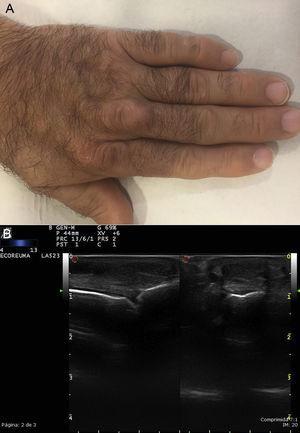 A. Xantomas tendinosos en los tendones extensores de los dedos. B. Ecografía del mismo paciente, tendón extensor del tercer dedo: en un corte transversal y longitudinal se ve un tendón engrosado, de una ecotextura heterogénea.