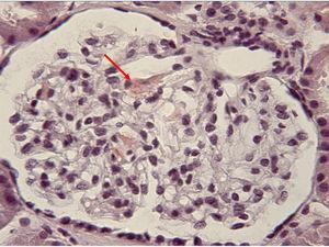 Imagen de la tinción rojo Congo (×40) del glomérulo del paciente, mostrando positividad para el amiloide depositado en el mesangio (flecha).