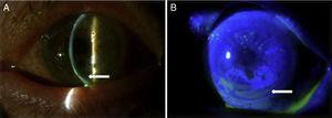 Slit lamp photographs showing a peripheral corneal thinning (A, arrow) with a non-homogeneous distribution of fluorescein stain (B, arrow).