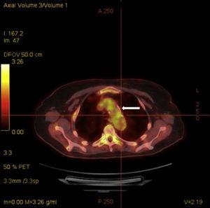 Axial 18FDG PET/CT view showing an increased uptake of 18F-fluorodeoxyglucose at the thoracic aorta (arrow).