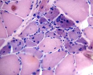 Biopsia de músculo: infiltrado inflamatorio, con atrofia y regeneración perifascicular.