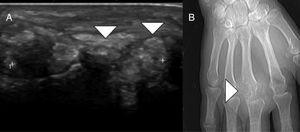 A) Se observa una tumoración de partes blandas localizada en la región dorsal de base de tercer dedo, de ecoestructura heterogénea (cabezas de flecha blanca). B) Imagen de localizador de TC: se observa que lesión destruye la cortical de la cabeza del tercer metacarpiano (cabeza de flecha blanca).