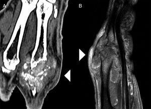 Imagen de TC (A) y de RM (B). La lesión tiene una morfología lobulada, componente heterogéneo con zonas calcificadas en su interior y produce destrucción de superficies óseas de la articulación metacarpofalángica (cabezas de flecha blanca).