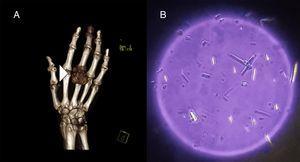 A) Se observa la reconstrucción en volumen rendering, que revela una tumoración de partes blandas en la articulación metacarpofalángica. B) Estudio con microscopio óptico que detectó cristales de urato monosódico con forma de aguja en el interior de la tumoración.