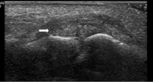 Ultrasound longitudinal view demonstrating an ovoid heterogeneous mass with hyperechoic foci adjacent to proximal interphalangeal joint (arrow).