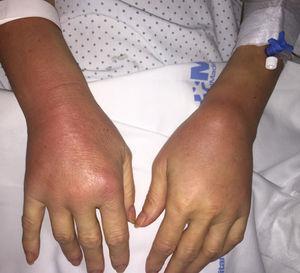 Artritis de ambos carpos con tenosinovitis.