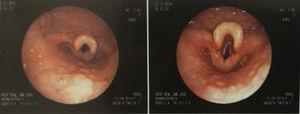 Endoscopia donde se observa estructuras laríngeas edematosas multinodulares.