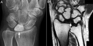Radiografía simple del carpo izquierdo correspondiente al caso 3 que muestra marcada esclerosis del hueso semilunar (A, flecha). RM del carpo derecho (secuencia T1) correspondiente al caso 2, en la que se evidencia señal hipointensa en el hueso semilunar (B, flecha).
