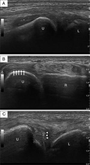 "Ultrasound images of the right wrist. (A) Longitudinal view of the distal ulna, with grey-scale grade 2 synovitis of the distal radio-ulnar joint (asterisk). (B) Transverse view of the distal radio-ulnar joint, with an intrahyaline hyperechoic band parallel to the surface of the distal ulnar cartilage (arrows). (C) Several hyperechoic spots with a ""punctate pattern"" of the triangular fibrocartilage complex (arrow heads). L – lunate; R – radium; U – ulna."
