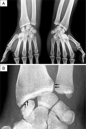 Radiography images of the wrists. (A) Anteroposterior projection, with radio-carpal joint space narrowing and subchondral sclerosis of the radium of the right wrist. (B) Detail of the right wrist, with linear calcifications of the distal radio-ulnar and radio-carpal joints (arrows).