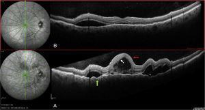 Ojo izquierdo: A) Al diagnóstico. B) Siete días tras el diagnóstico.
