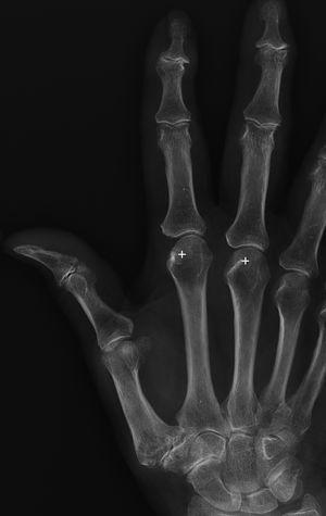 Radiografía AP mano del paciente con artrosis, sin hemocromatosis. Como ejemplo de comparación no se observa la afectación en metacarpofalángicas ni la formación de osteofitos en gancho (+).