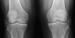 Radiografía AP de rodillas. Muestra condrocalcinosis radiológica (*), disminución del espacio articular, esclerosis subcondral y osteofitos marginales.
