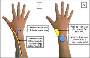 A) Trayecto anatómico de los tendones implicados en el síndrome de intersección distal. B) Localización del dolor en el síndrome de intersección distal y en la tendinitis de De Quervain.