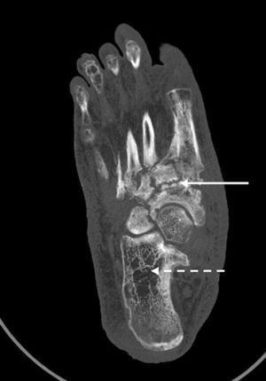 Tomografía computarizada del pie derecho: flecha blanca recta: afectación difusa con desestructuración y remodelación ósea del mesopié tarso-metatarsiana y escafo-cuneiformes. Flecha blanca punteada: áreas radiolúcidas compatibles con osteopenia por desuso.