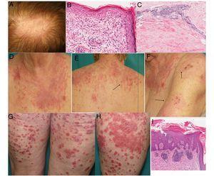 A) Placa eritematosa alopécica en cuero cabelludo con descamación. B) Biopsia de la placa del cuero cabelludo: hiperqueratosis ortoqueratósica, engrosamiento de la membrana basal, degeneración vacuolar y queratinocitos apoptóticos (hematoxilina-eosina×400). C) Biopsia de la induración cutánea lumbar mostrando marcado engrosamiento del septo, hialinización de haces de colágeno e infiltrado linfoplasmocitario perivascular compatible con morfea. Ausencia de paniculitis lobulillar, necrosis hialina de la grasa, focos de calcificación y folículos linfoides descartando paniculitis lúpica (hematoxilina-eosina×200). D-F) Placas eritematoedematosas en áreas fotoexpuestas con áreas erosivas y necróticas (flechas): LECSA. G y H) Placas eritematoescamosas en muslos: psoriasis en placas. I) Biopsia de una placa: hiperqueratosis, paraqueratosis, microabscesos de Munro, adelgazamiento suprapapilar y elongación de capilares dérmicos, típica de psoriasis (hematoxilina-eosina×200).