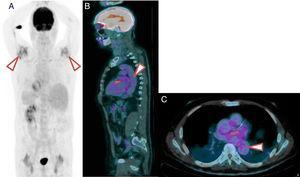 18 F-FDG PET/TC de un paciente con PMR y VGV. A) Imagen 18F-FDG PET/TC que muestra inflamación importante en los hombros. B) Corte sagital. Nótese la actividad metabólica de grado 2 de distribución lineal en aorta. C) Corte axial. Nótese la actividad metabólica de grado 2 de distribución lineal en la aorta torácica.