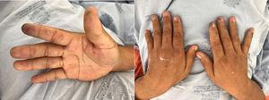 Lesiones isquémicas en pulpejos de las manos, secundarias a vasculitis crioglobulinémica.