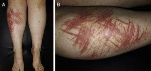 A) Lesiones purpúricas palpables en ambas extremidades inferiores, agrupadas siguiendo una distribución lineal y confluente. B) Detalle de las lesiones en zona pretibial derecha.