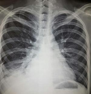 Hombre de 22 años con hermano gemelo con lupus eritematoso sistémico, ambos con datos de síndrome de Schnitzler (cuadros intermitentes de fiebre, urticaria, dolor abdominal, angioedema, artritis), en los últimos 2 meses con disnea progresiva hasta la de mínimos, poliartritis, hipertensión, edema mecánico y en los días precedentes tos e incremento de disnea. A la exploración, con complejo de la pulmonar de Chávez y síndrome de condensación basal derecho; radiografía con datos de hipertensión pulmonar, 4 arcos, neumonitis basal derecha y derrame homolateral. Se realizó diagnóstico de neumonitis lúpica que se manejó con prednisona 0,5mg/kg/día y ciclofosfamida con adecuada respuesta.