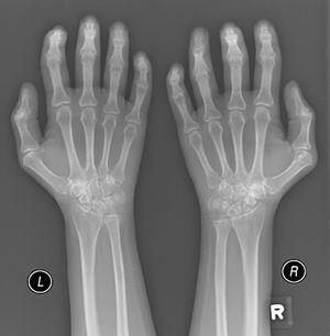 Plain X-ray both hands, showing cystic carpal bone erosions and decreased radio carpal joint space bilaterally, cystic erosions of the upper radius, carpo-metacarpal joints bone erosive changes and joint space narrowing of the proximal interphalangeal joints and metacarpophalangeal joints (MCP) with Juxta-articular osteoporosis.