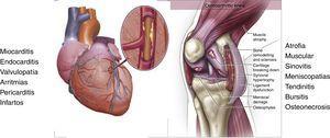 La articulación como un órgano. La articulación de la rodilla esta constituida por hueso subcondral, el cartílago articular, la membrana sinovial, los ligamentos cruzados, los meniscos, la capsula articular, ligamentos peri-articulares, bursas y musculo esquelético de que la rodea. Todos estos tejidos especializados están organizados de tal forma que en su conjunto realizan una función, la movilidad articular. El daño de estos tejidos puede dar lugar a la aparición de la Artrosis y a la disfunción del órgano. (Modificada de Hunter D, New England Journal Medicine 2015;372:1040-47).