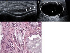 A) Imagen de doble contorno del cartílago femoral (flechas). B) Quiste de Baker de paredes gruesas (círculo) con puntilleo hiperecoico en su interior (cabezas de flechas). C) Material amorfo anfófilo acelular (estrella) bordeado por histiocitos epitelioides (doble flecha) y células gigantes multinucleadas (flecha) que fagocitan este material.