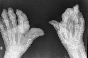 Radiografía de manos: aumento de partes blandas y erosiones.
