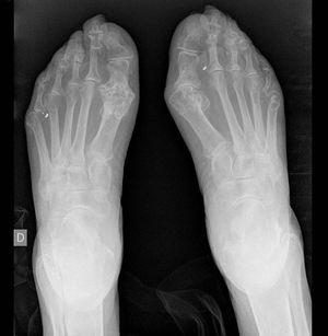 Radiografía de pies: erosiones en primeras metatarsofalángicas.