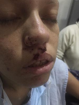 Ptosis palpebral en el momento de la valoración inicial de la paciente y lesiones herpéticas.