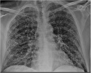 Radiografía de tórax al ingreso donde se objetivan infiltrados alveolares bilaterales con patrón en vidrio deslustrado.