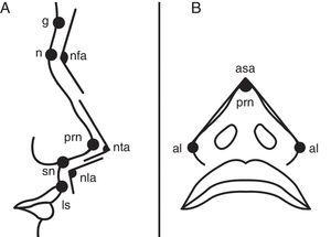 Facial and nasal soft tissue landmarks. (A) Facial soft tissue landmarks of glabella (g), nasion (n), pronasale (prn), subnasale (sn), labiale superius (ls) and angles of nasofrontal (nfa), nasal tip (nta), and nasolabial (nla) were demonstrated on lateral view. (B) Facial soft tissue landmarks of alare (al), pronasale (prn) and alar slope angle (asa) were demonstrated on basal view.