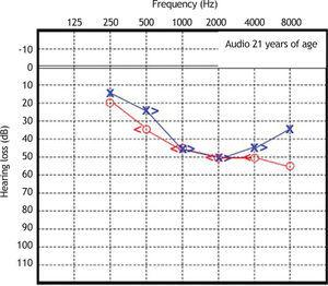 Audiometry in patient 1, performed at 21 years of age.