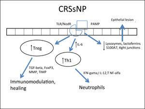 Specific response to chronic rhinosinusitis without nasal polyps (CRSsNP). After stimulation of innate immunity in the presence of high concentrations of IL-6, there is a polarized adaptive response to Th1, with associated increase in Treg. That results in neutrophil response and a modulated inflammatory process.