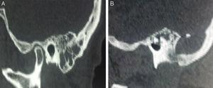 (A) Temporal bone CT scan: thickened mucosa within the mastoid air cells. (B) Presence of an expansive osteolytic temporal bone lesion&#59; note the destruction of mastoid apex.