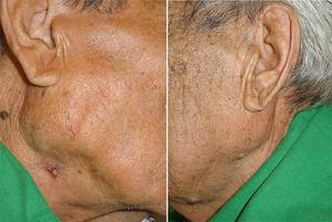 Pictures obtained after treatment was completed (10 month). The parotid gland swelling reduced on both sides and the ulcerative lesion on the right side healed.