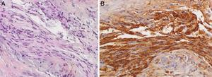 Histological examination of chorda tympani schwannoma with inflammatory tissue by associated MOE (200×). (A) Histological examination shows typical elongated spindle cells that tend to form palisades on hematoxylin–eosin safran) (HES) coloration. (B) Spindle cells are diffusely and strongly positive for S100 protein. MOE, malignant otitis externa.