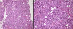 In hematoxylin-eosin staining, the mass was consisted of pure serous glandular tissue in 100× magnification (A). Acinar cells contained zymogen granules and ductal system was intact in 200× magnification (B).