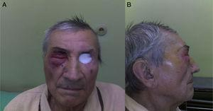 Patient two years after left orbit exenteration and radiotherapy&#59; the second tumor is infiltrating the right periorbital skin and eyelids, frontal and lateral view (A and B).