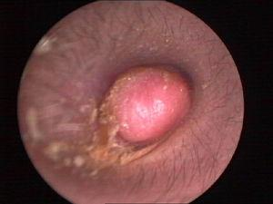 Endoscope test showing a pink, ovary-shaped neoplasm with a smooth surface. The tympanic membrane was covered without adhering to the adjacent structure.