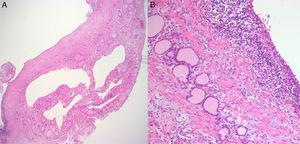 Histological finding of ultimobranchial body cyst in thyroid gland (A, 100×). The cyst is lined by stratified squamous epithelium that is slightly larger than thyroid follicular cell with surrounding small lymphocytes (B, 400×).