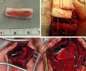 Grafting. (A) LTR using a modified boat for anterior grafting in a 15yo Down syndrome girl with anterior SGS 2ry to a high long-standing high tracheostomy. (B) Graft being fixed to the expanded cricoid cartilage. (C) Anterior tracheal defect 2ry to loss of cartilage and formation of fibrosis (that was excised) 2ry to a traumatic and long-standing tracheostomy in a 16yo boy. (D) Reconstruction using auricular cartilage graft.