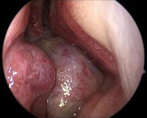 Endonasal endoscopy of the right nasal cavity: appearance of the tumor mass.