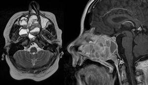 MRI of the head. Axial T1 weighted image (left) and sagittal T1 weighted image (right): an extensive iso- to hypertense lesion of the midface with multilocular conspicuous fluid levels, enhancing septations and solid components. Tumor affected the medial, lateral and ventral wall of the right maxillary sinus. Contralateral it destructed the medial wall of the left maxillary sinus. Erosions of the right bony palate and of major parts of the dorsal septum and the inferior concha nasalis on both sides were observed. The dorsal expansion leads to the clivius, which was partly destructed, and to destruction of the pterygoideus process on the right. Radiologic investigations furthermore revealed partly destruction of the medial wall of the internal carotic artery and partly destruction of the orbital floor and lamina papyracea right.