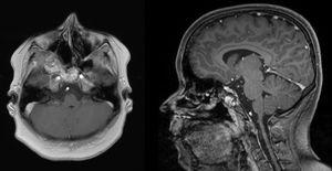 MRI of the head 18 months after primary surgery. Axial T1 weighted image (left) and sagittal T1 weighted image (right): tumor mass was significantly reduced after the first intervention. A minimal residual tumor affecting the clivus and the ethmoid bone can be observed but lesions do not cause any clinical symptoms.