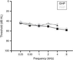 Audiograms of good and poor hearing aid performers.