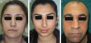 (A) Type I crooked nose (deviation of the lower two-thirds of nose). (B) Type II crooked nose (deviation of the whole nose in the same direction). (C) Type III crooked nose (deviation of the whole nose with a curved rhinion).
